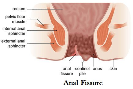 Pain Around The Anus Is Like Being Pricked By A Needle After A Bowel Movement?