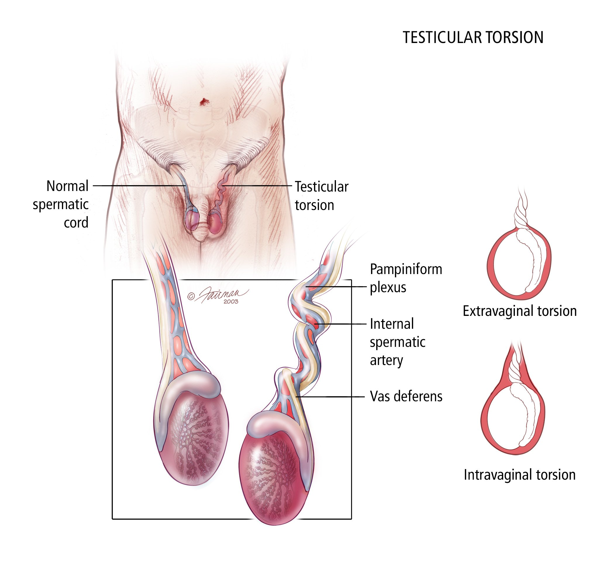 The Cause Of Pain In The Testicles And Feels Smaller?