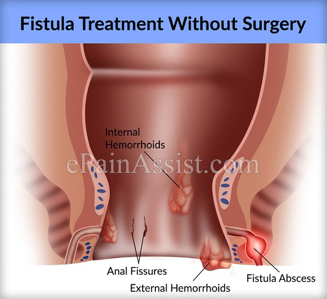 Management Of Anal Fistulas Without Surgery?