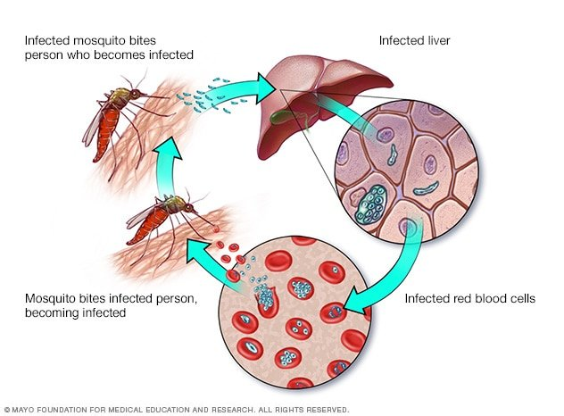 What Are The Early Symptoms Of Malaria?