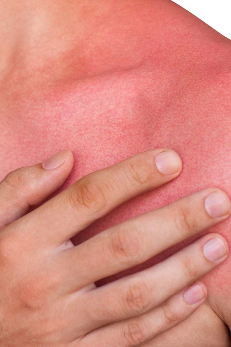 Causes And Ways To Deal With Redness Of Itchy Skin That Occurs Suddenly And Leave Scars?