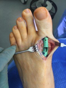 The Stitches On The Big Toe Are Painful And Numb?