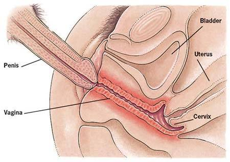 Pain During Intercourse?