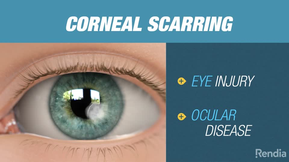 Is Scar Tissue In The Cornea Of the Eye Can Heal .. ??