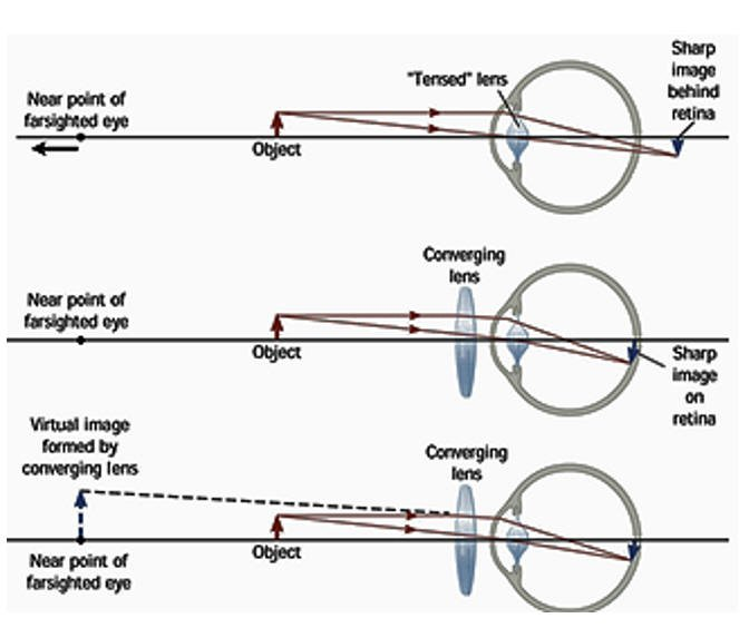 The Cause Of The Difference In The Focus Point On The Eye, The Direction Of Eye Sight Becomes Different In The Left Eye