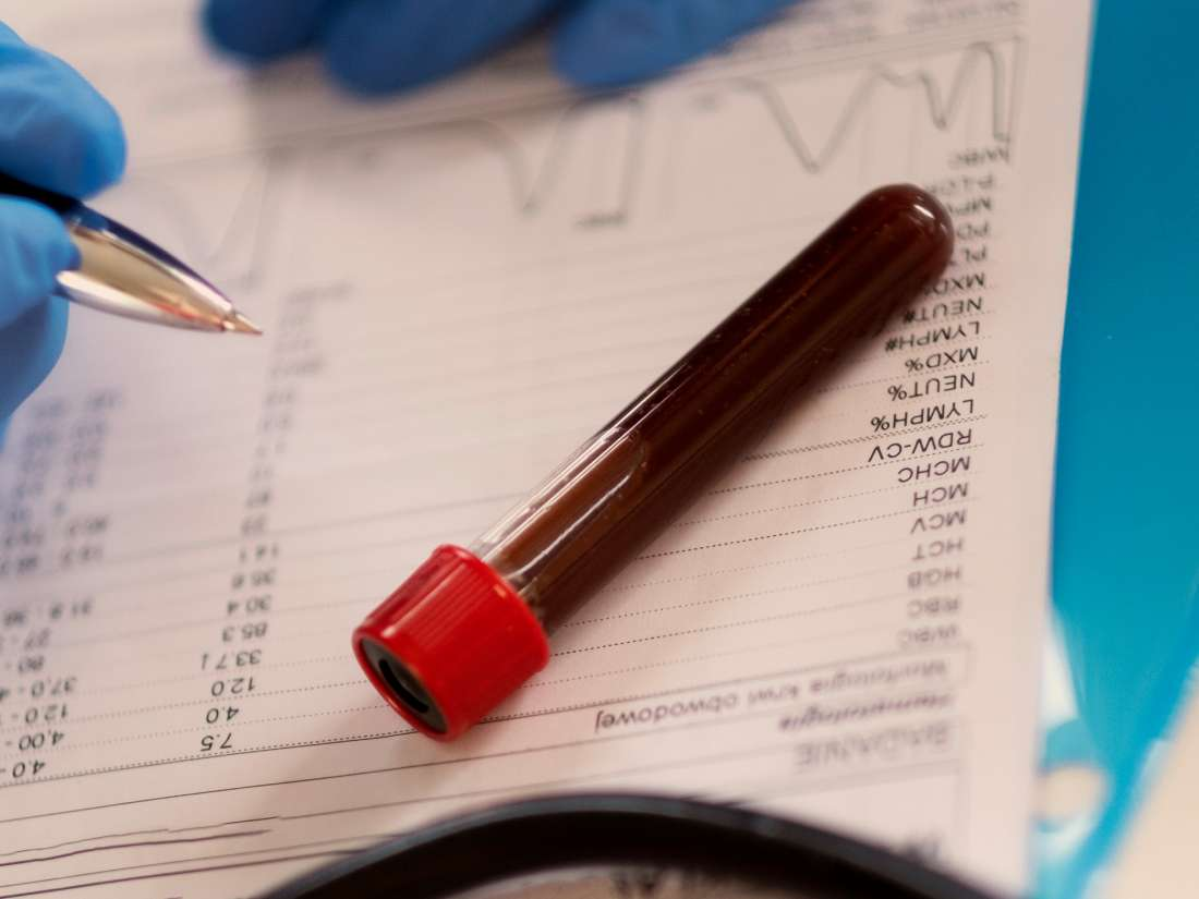 Explanation Of The Results Of Blood Tests For Medical Check-ups?
