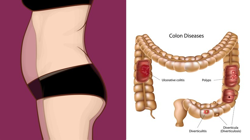 Distended Stomach Like An Abscess In The Stomach?