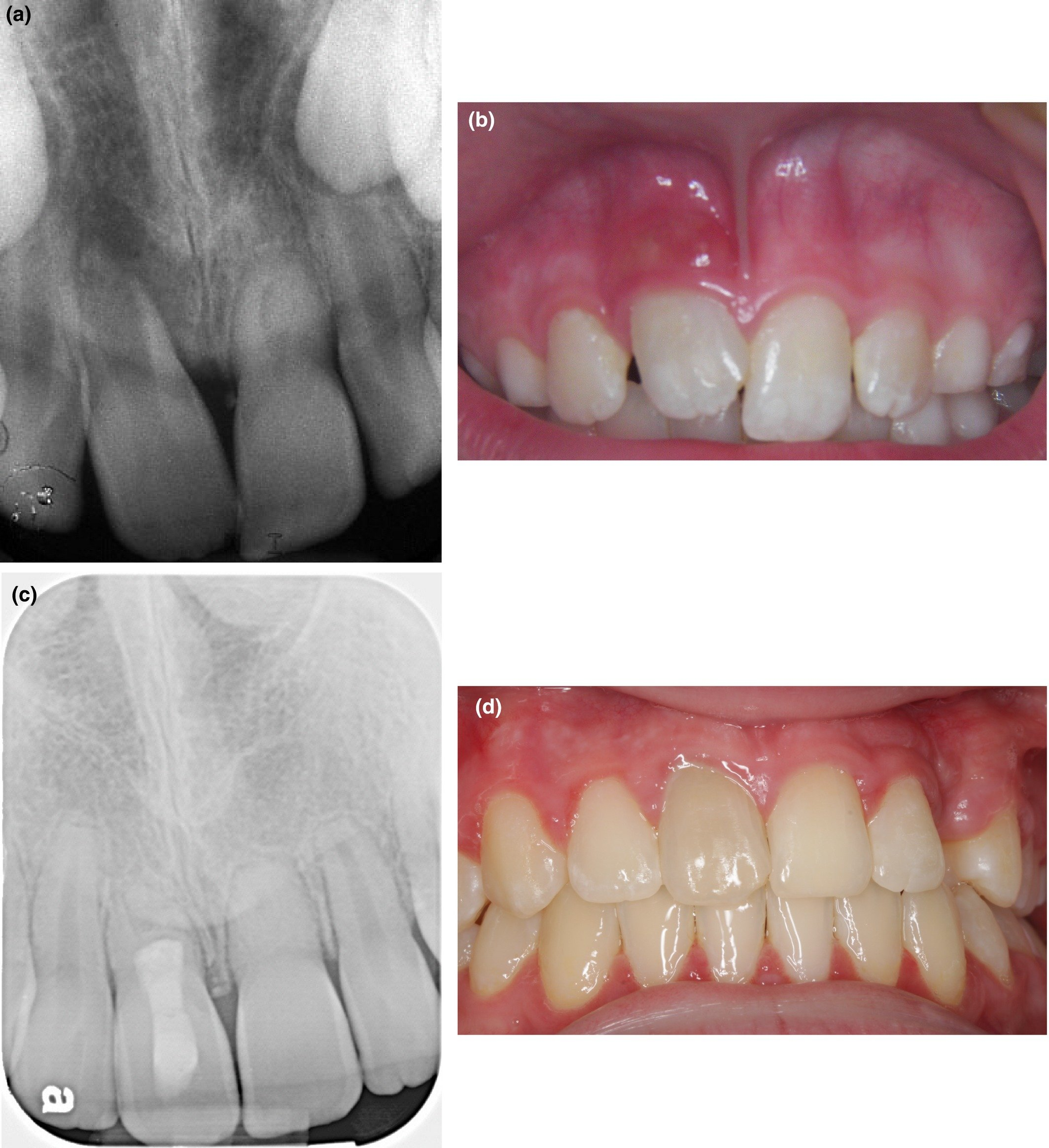 Overcoming The Remaining Tooth Roots Left In The Gums And Depressed Other Teeth?