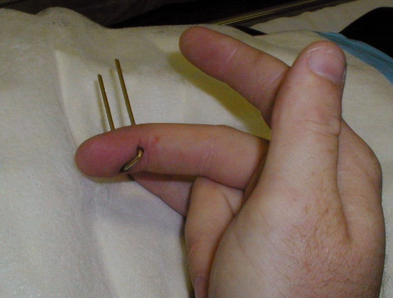 Handling Of A Finger Nail Wound After Stapling?