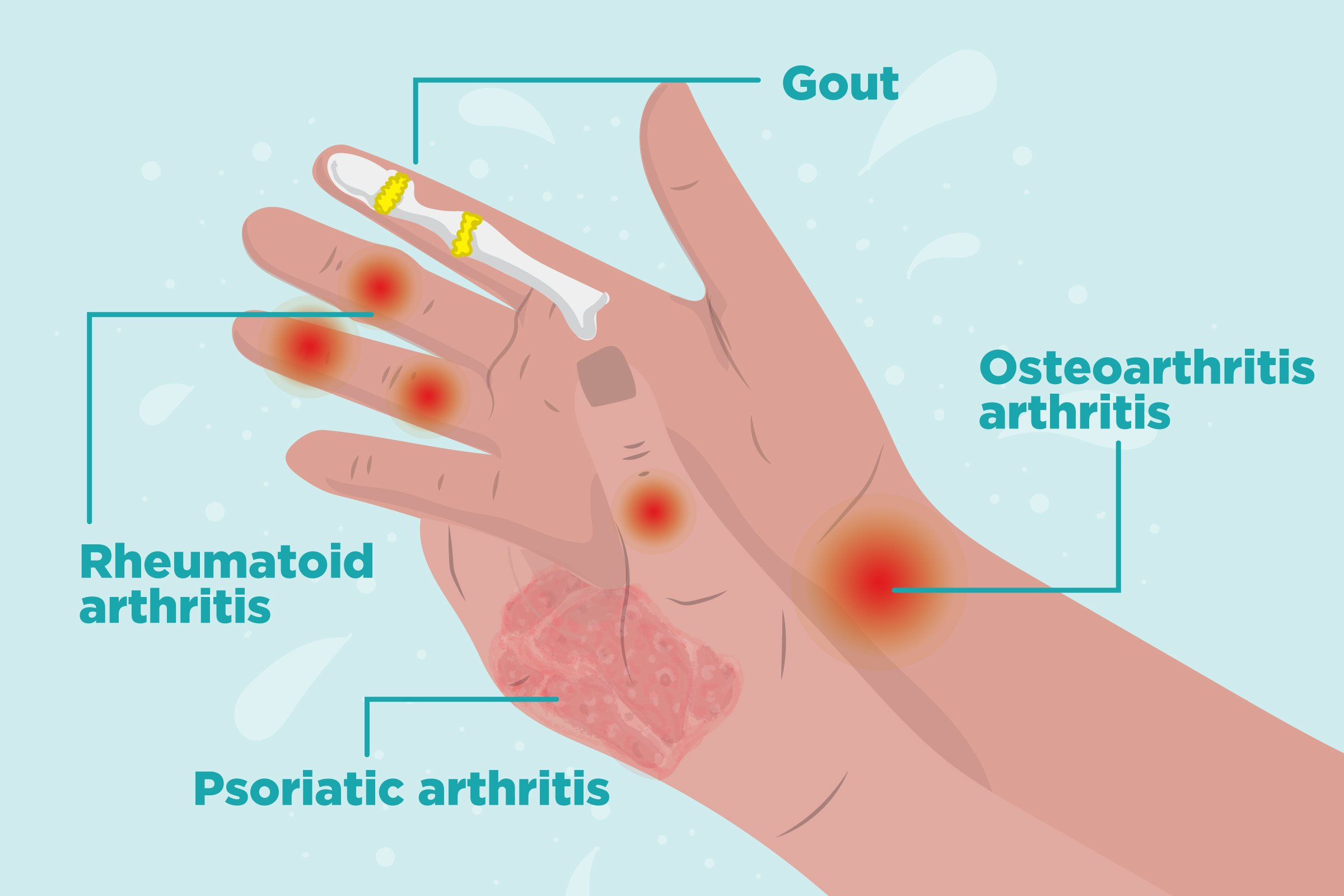 Joint Pain In The Right Hand?