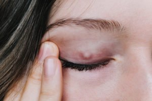 Why Don't The Lumps On My Eyelids Go Away?