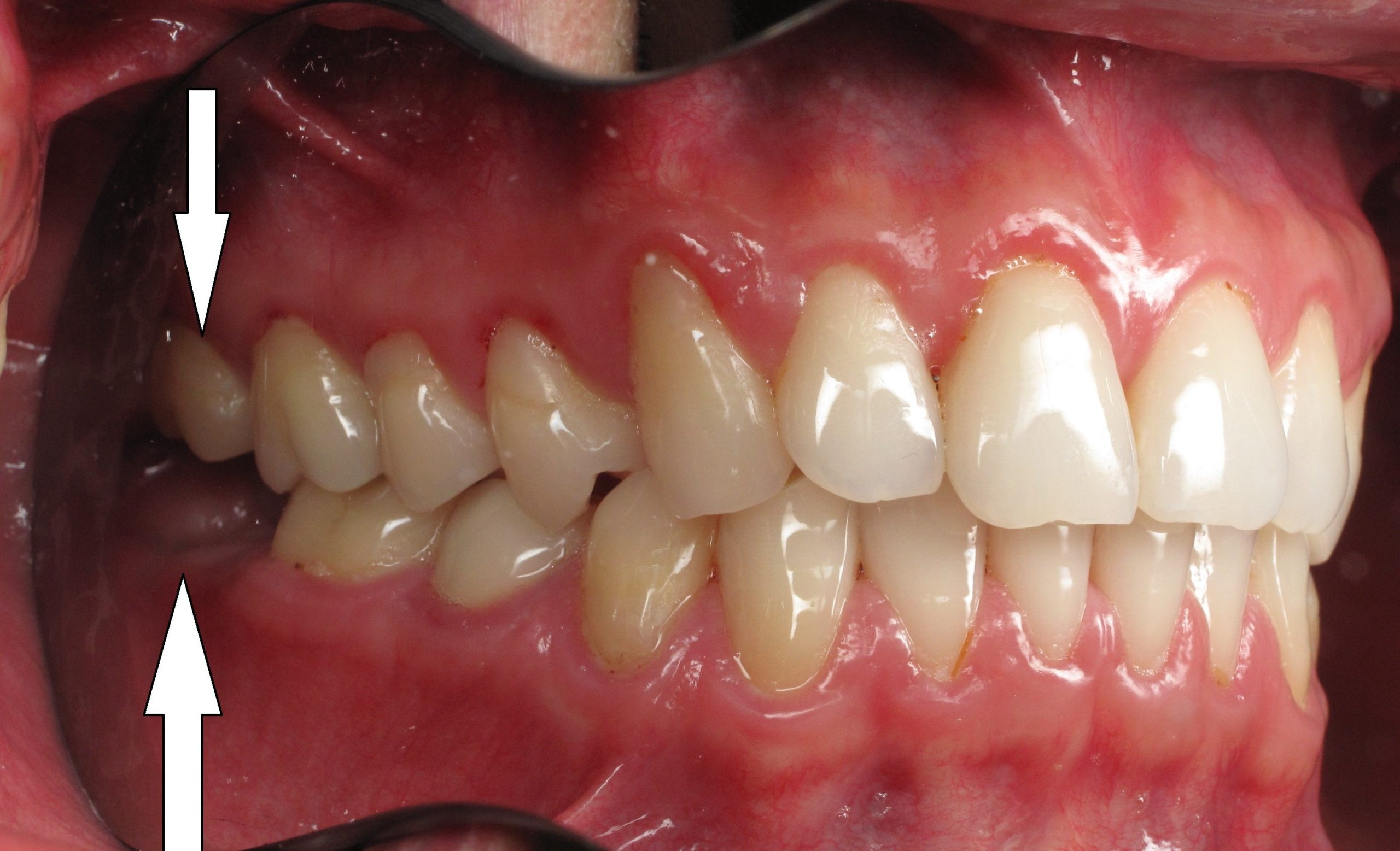 Can I Pull Out New Molars?