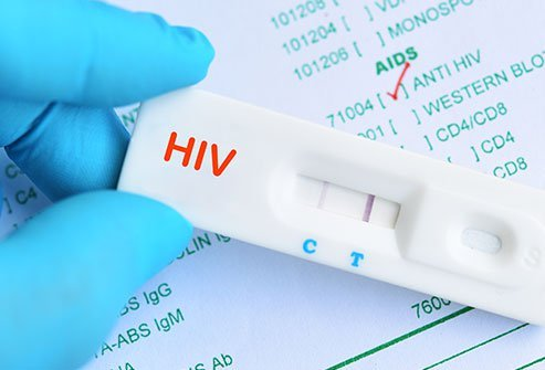 HIV Test Results?