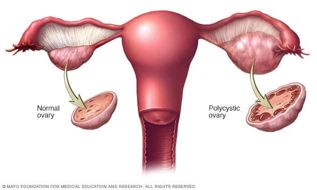 Explanation Of Ovarian Cyst Syndrome?