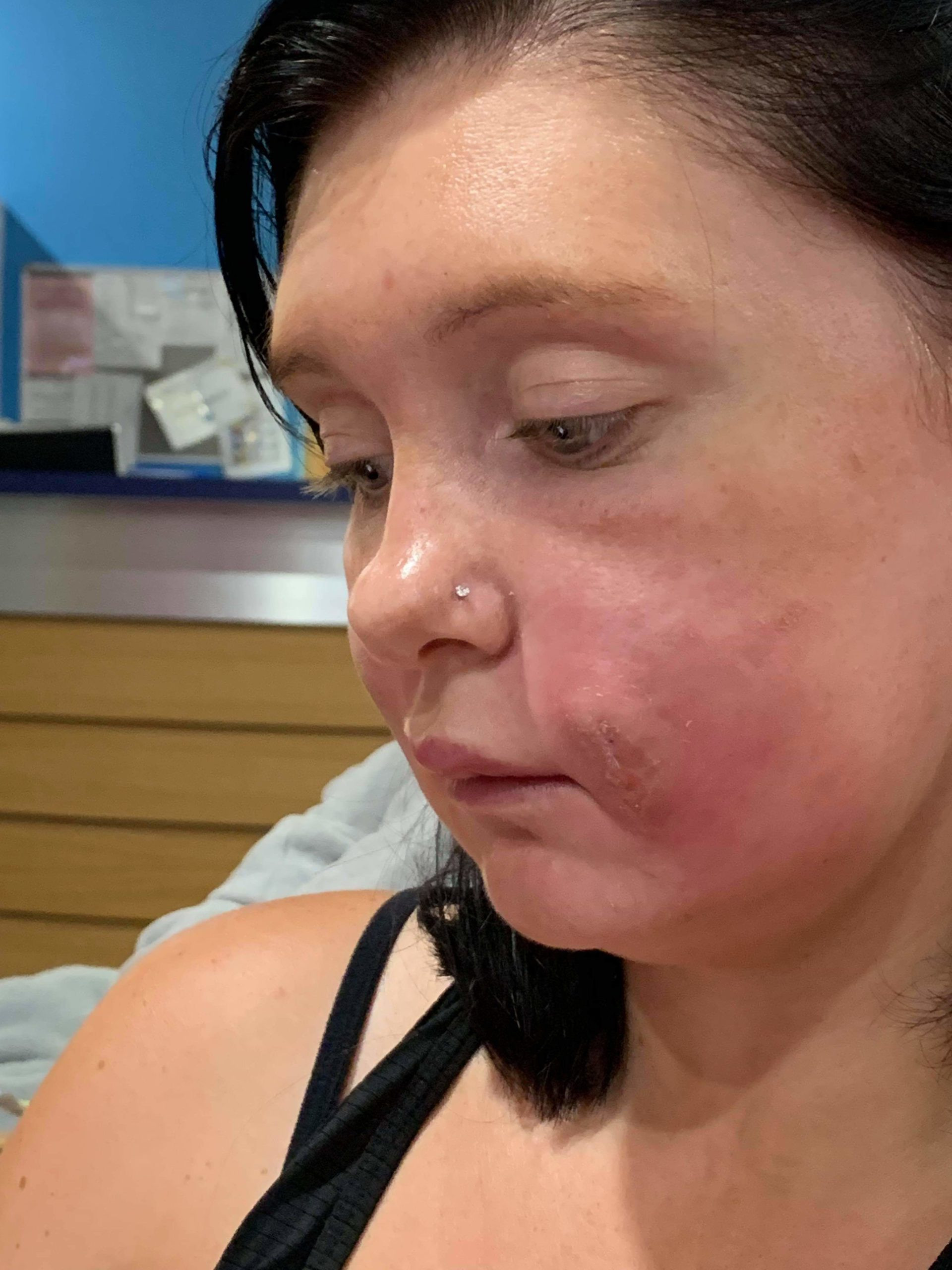 A Large Bump Appears On The Face After The Injection Of Metamizole?