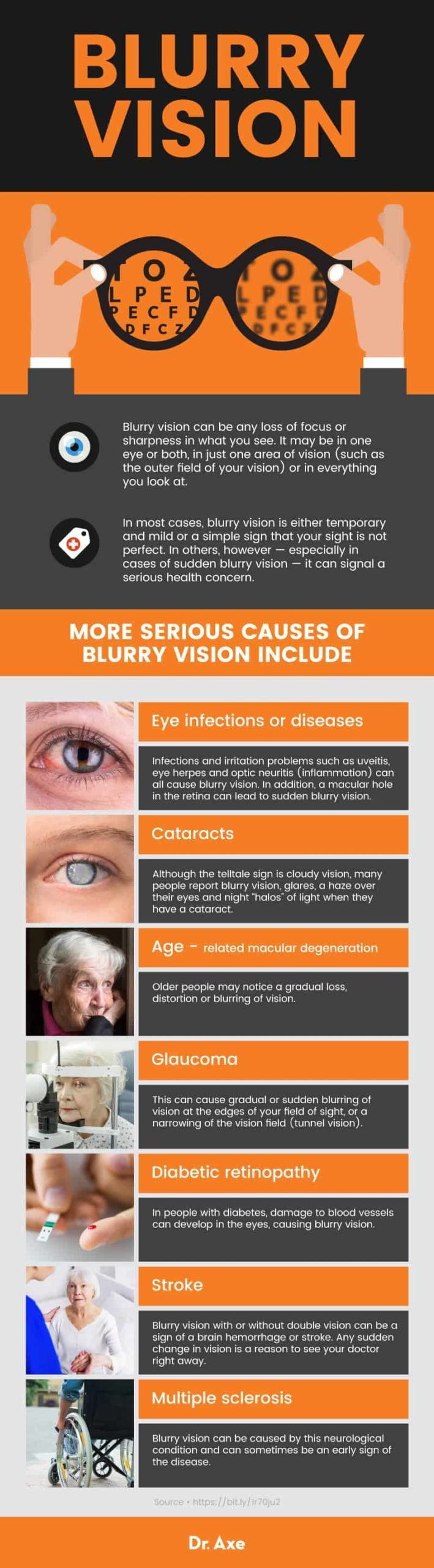 The Cause Of The Right Eye Is Suddenly Blurred With Brown Spots On Sight?