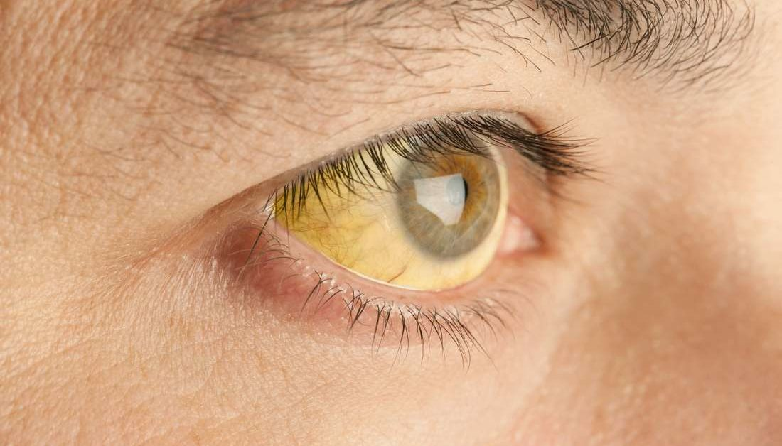 Does Drinking Coffee Often Cause Yellow Eyes?