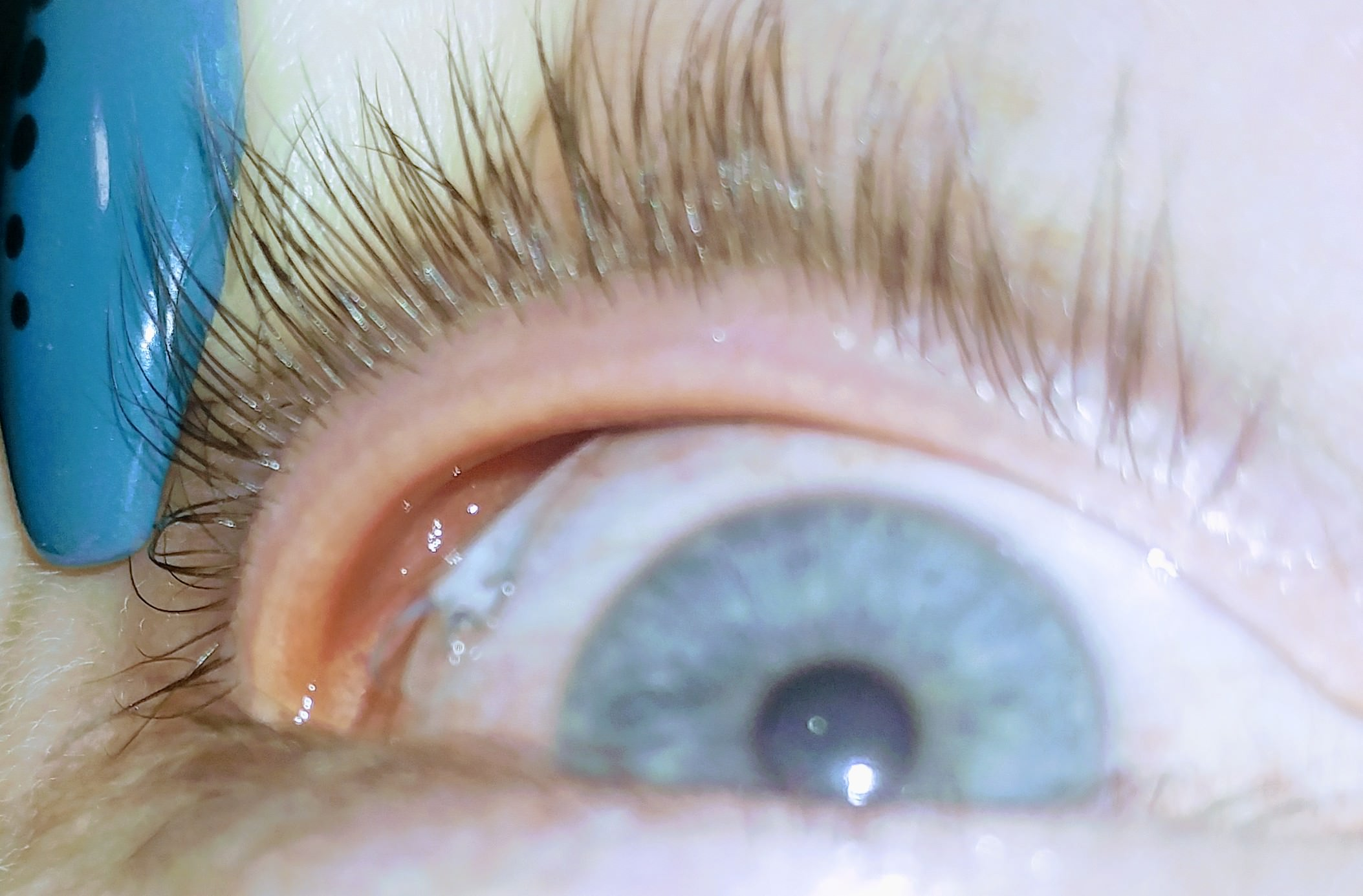 Contact Lenses Are Difficult To Remove And The Eyes Feel Sore?