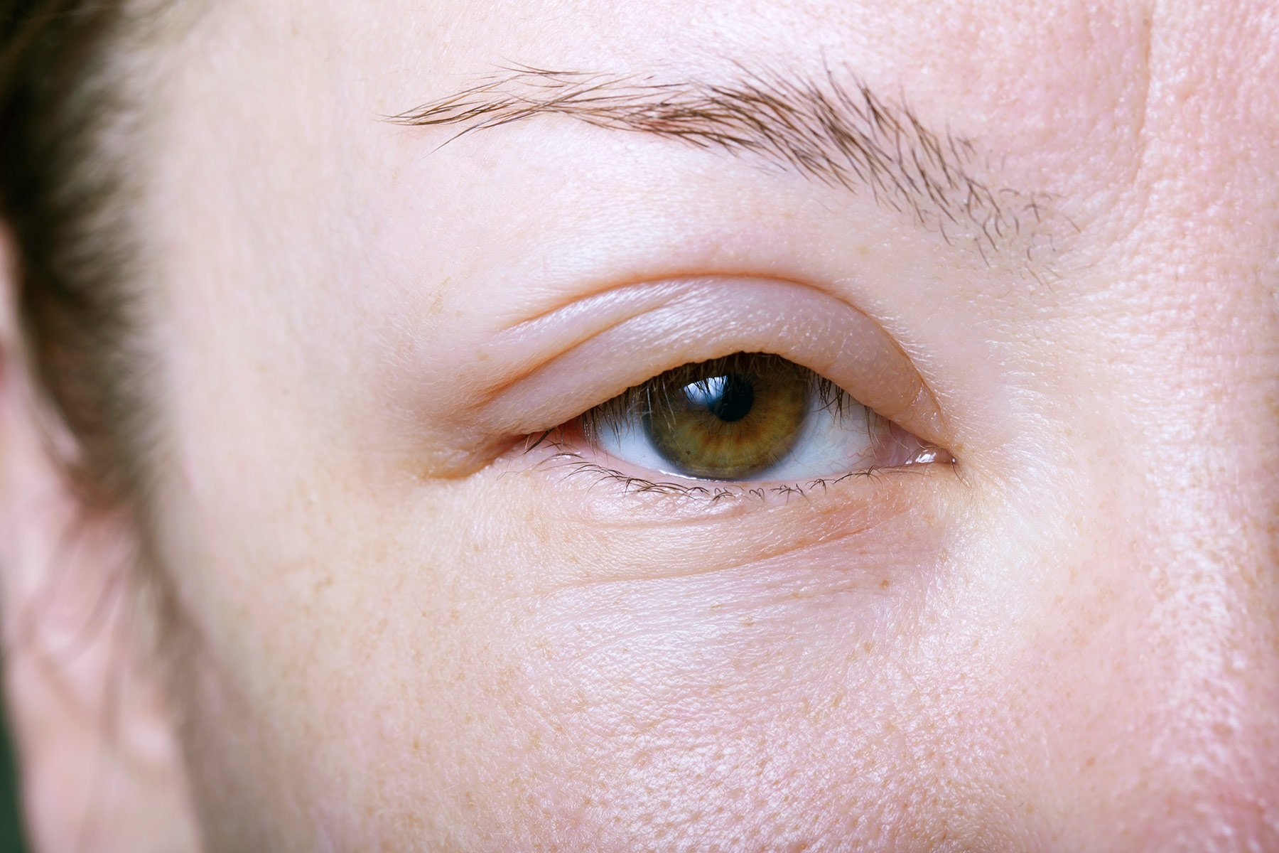 Swollen And Itchy Eyes After Taking The Drug?