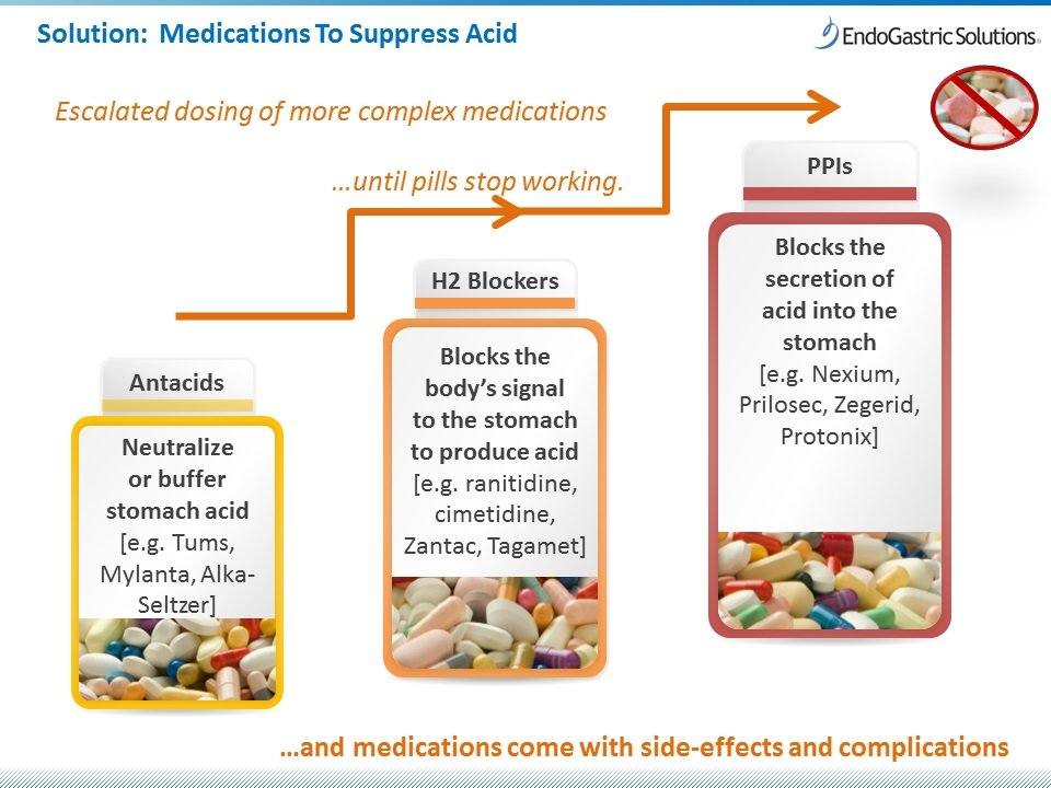 The Use Of Drugs To Treat Stomach Acid?