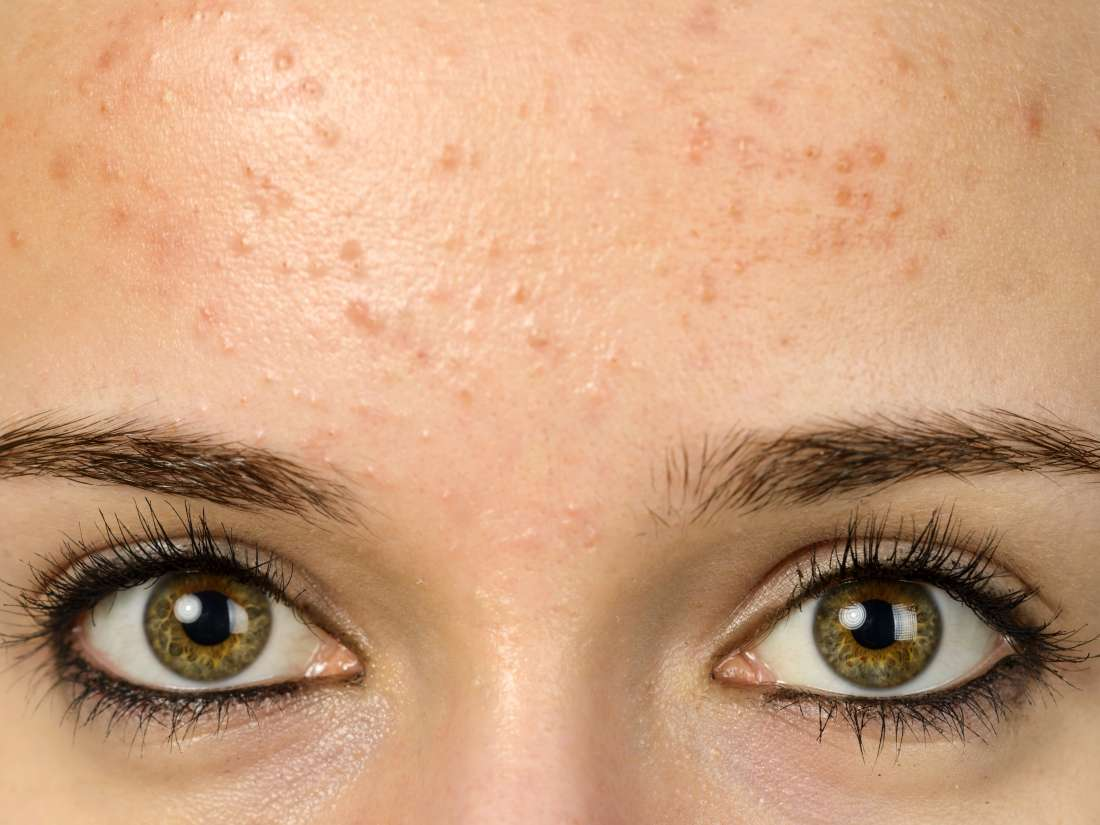 Handling Of Bumps On The Forehead?