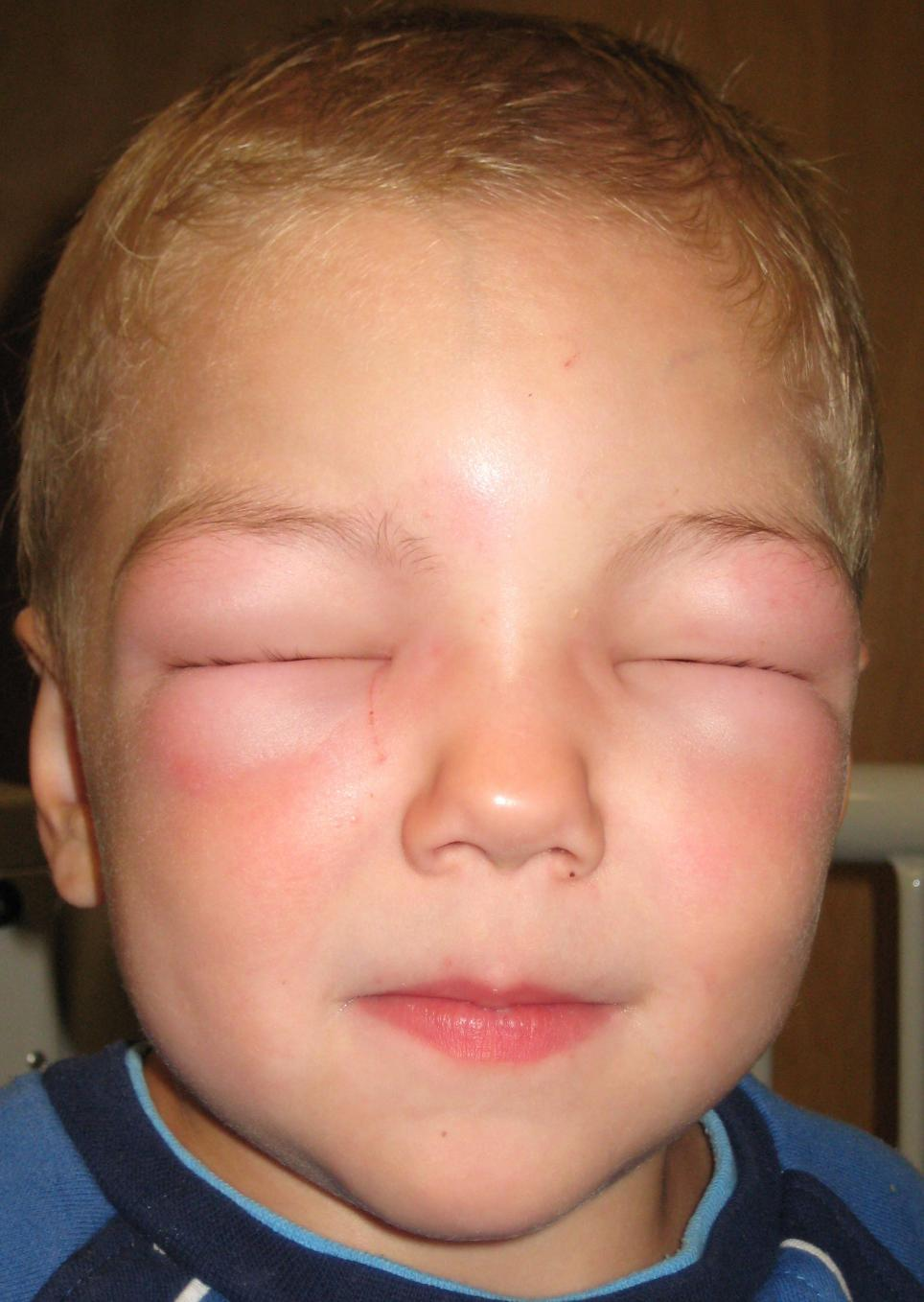 Causes And Overcome The Face That Is Allergic To Dust?