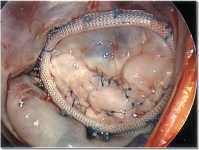 The Duration Of Recovery After Heart Ring Installation Surgery?