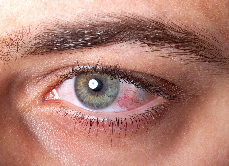 Next To Blurry Eyes After Using Contact Lenses?