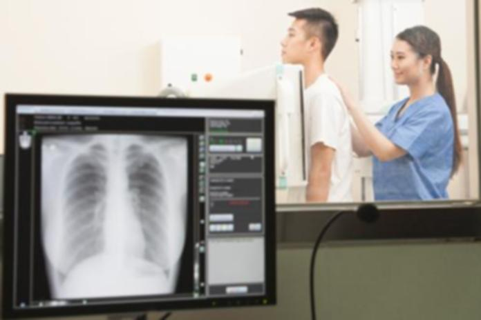 How Long Does The X-ray Take Out?