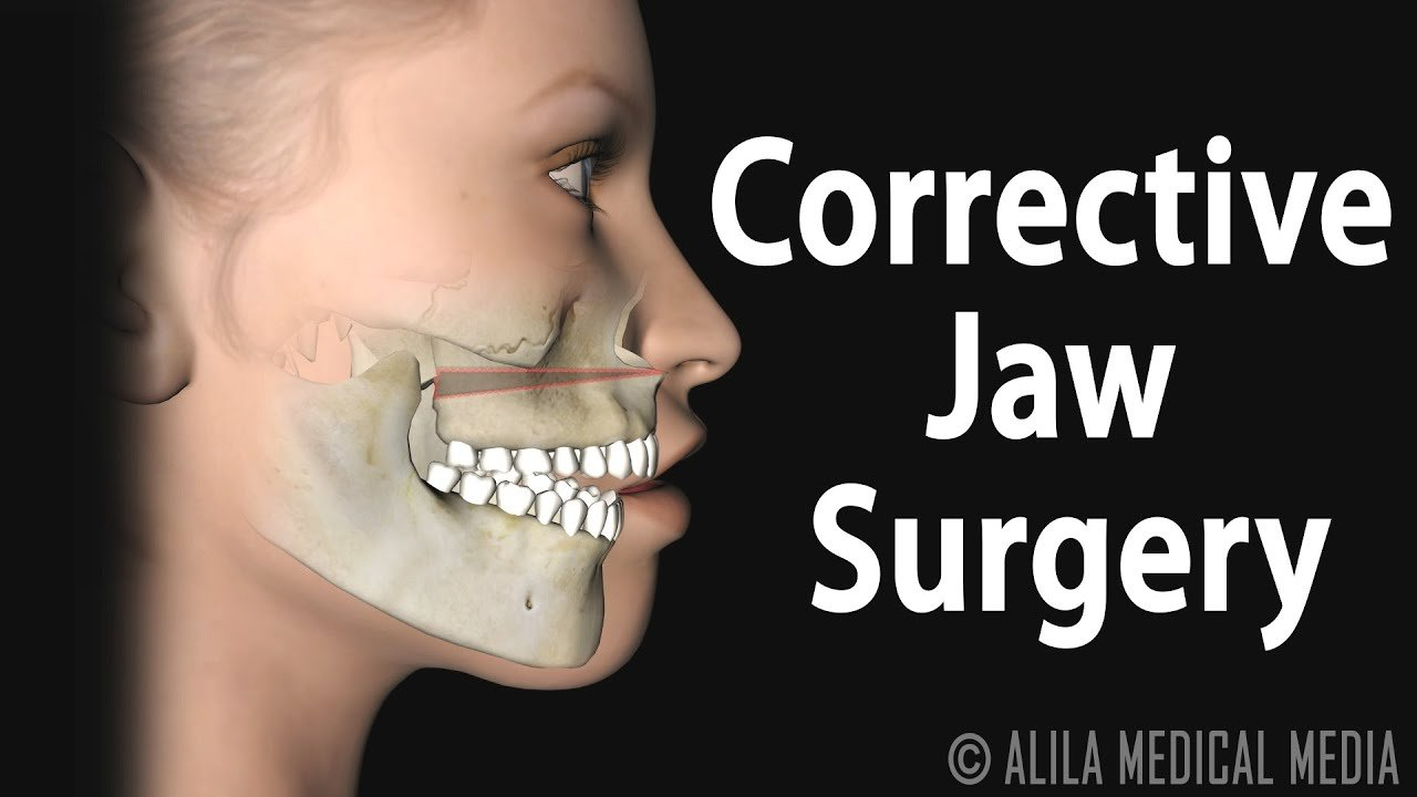 After A Broken Jaw Surgery Can I Pull My Teeth?