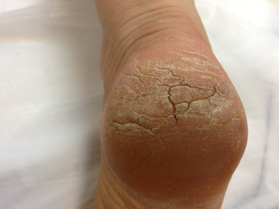 Treatment For Swollen Heels And Thickened Skin?