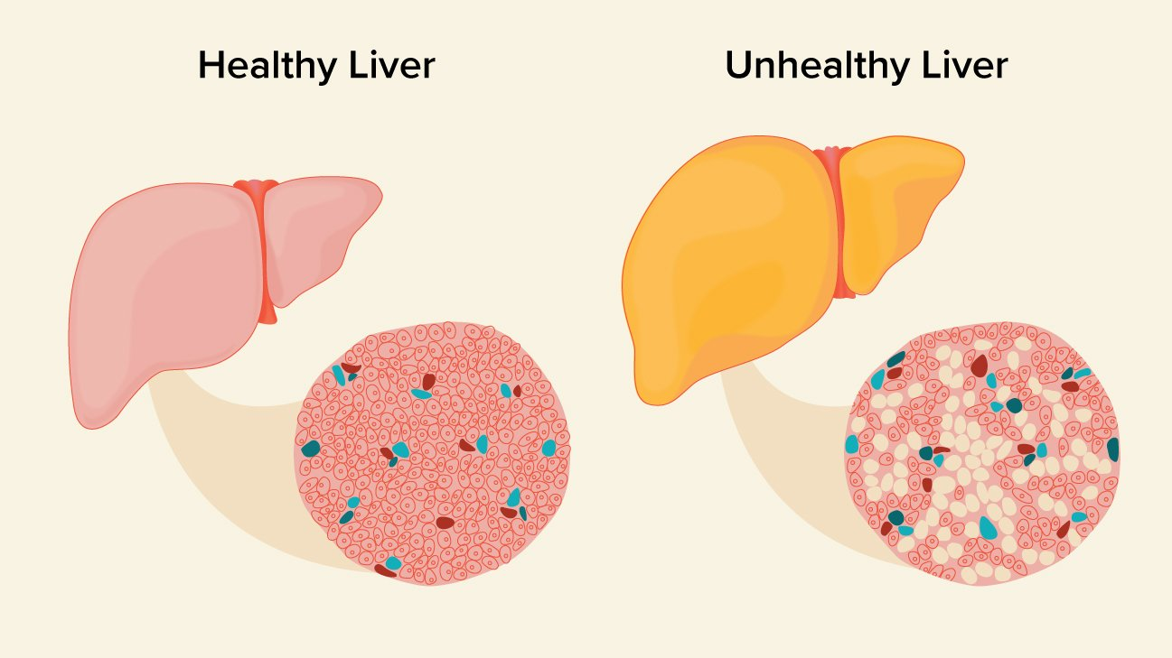 How To Measure The Severity Of Fatty Liver?