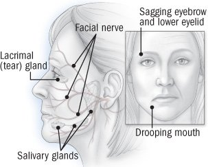 Can Bell's Palsy Sufferers Be Normal Again?