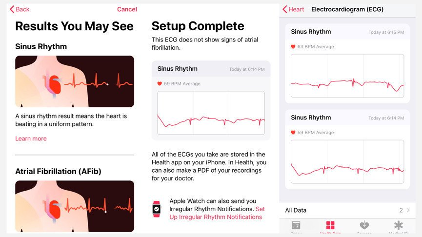 How It Works In The EKG To Detect Heart Abnormalities?