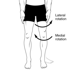 In The Knee And Lower Thigh Area, There Are White Hinged Stripes, Are Those Varicose Veins?