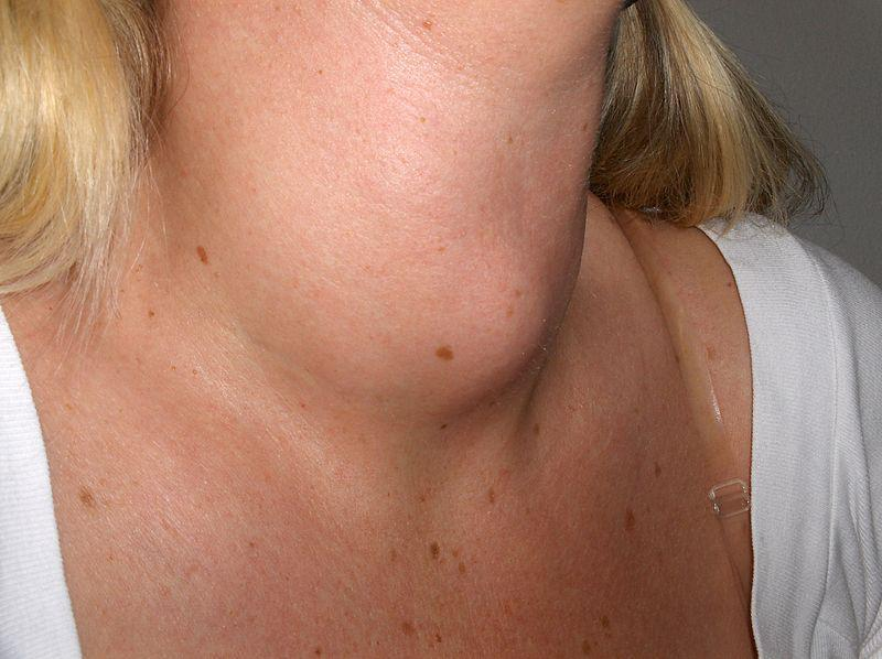Lumps In The Neck Accompanied By Sore Throat And Swollen Gums?