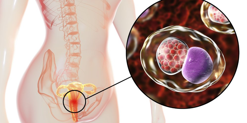 Gonorrhea That Does Not Heal After Previous Gonorrhea Treatment Is Incomplete?