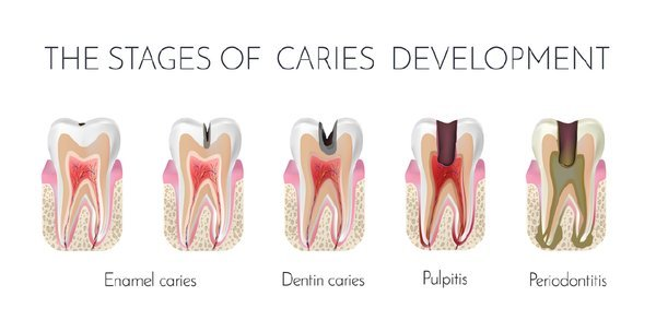 How To Deal With Cavities Due To Tooth Extraction?
