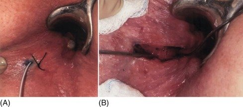 Why After 2 Weeks Of Anal Fistula Surgery, Still Bleeding From The Surgical Suture?