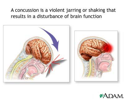 What Is The Danger To The Brain If A 16-month-old Child Accidentally Falls On A Large Bed?