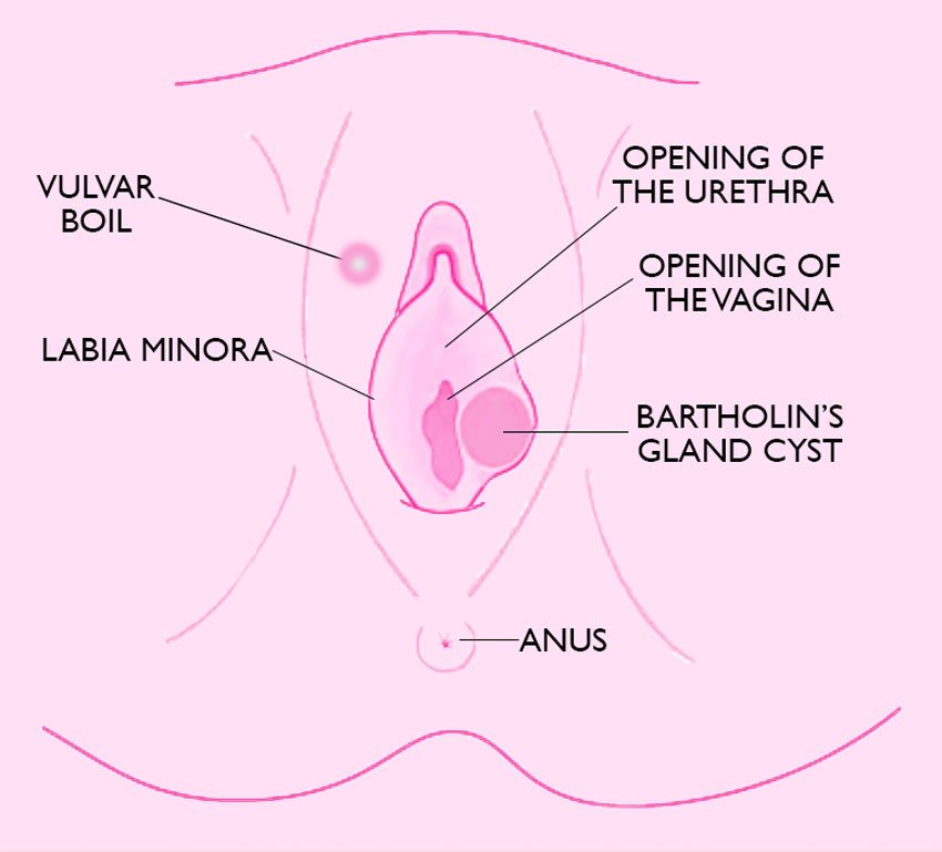 Pink Bump On The Lips Of The Vagina?