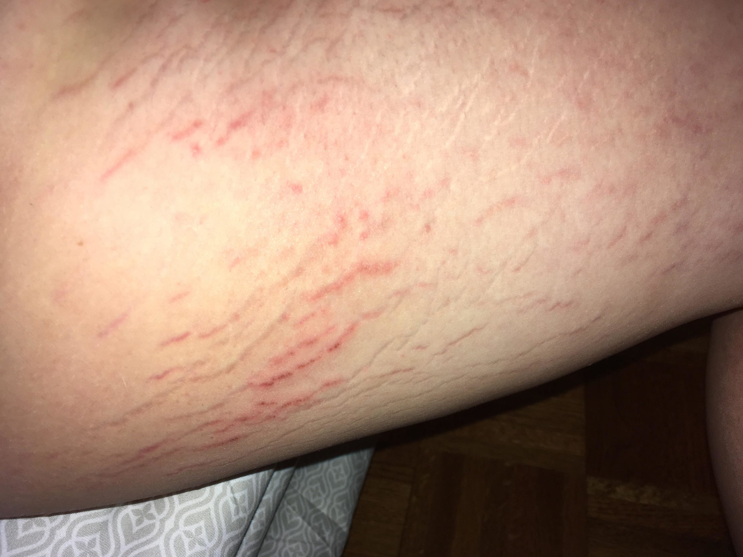 Stretch Marks On The Thigh That Feels Painful?