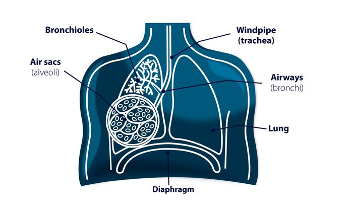 Does The Lung Have To Leak (pneumothorax) Must Be Operated On?