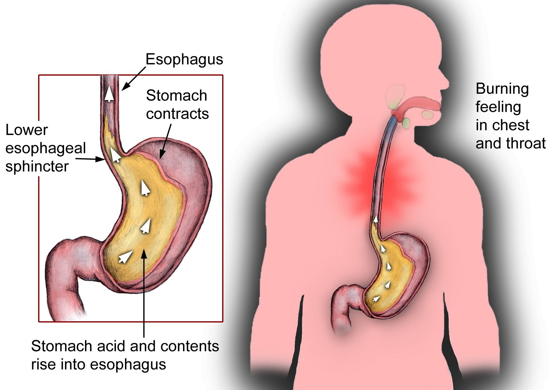 The Cause Is Often Belching And The Stomach Looks Great At The Age Of 22 Years With A History Of Ulcers?