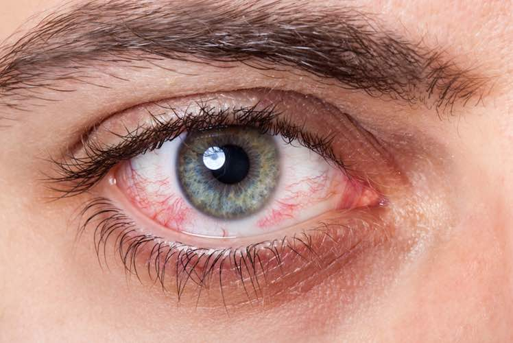 Eye Pain And Dripping Blood?