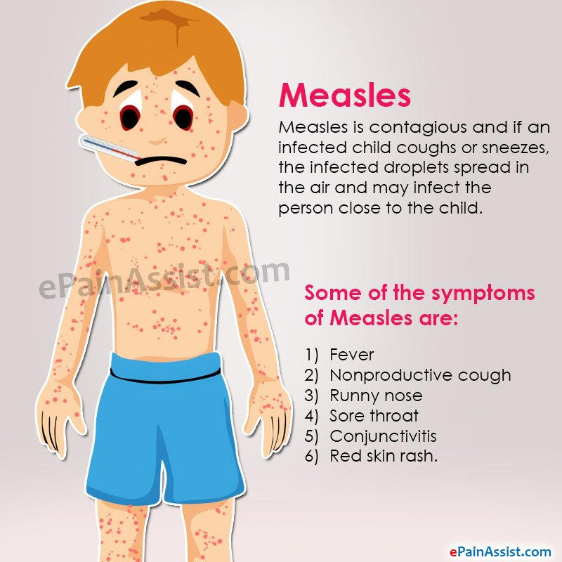 What Is The Right Medicine For Measles?