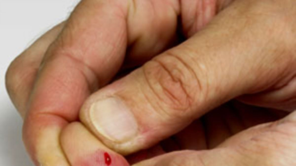 Treat Wound Seams Around The Nails To Dry Quickly?