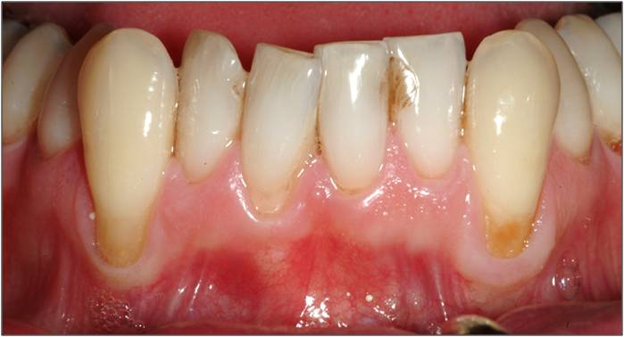 Swollen And Raised Gums?