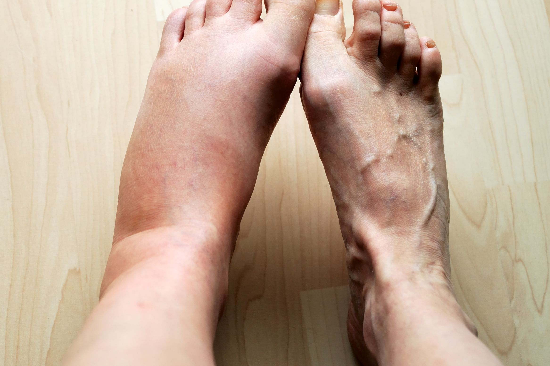 Causes Swollen Feet Accompanied By Shortness Of Breath?