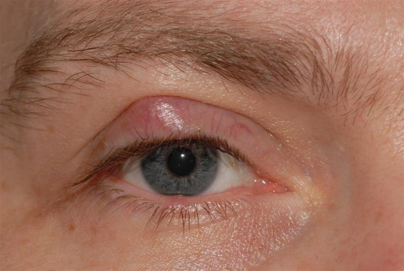 The Cause Of A Lump In The Eyelid That Does Not Hurt?